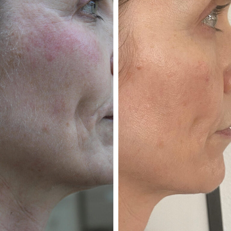 Beyond skincare – the non-invasive treatment loved by celebrities