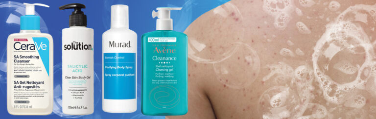 Top tips for back acne